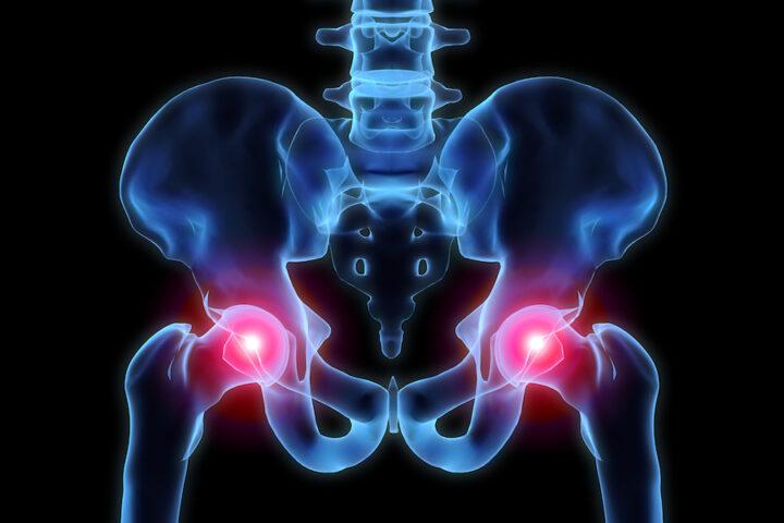 hip pain 101